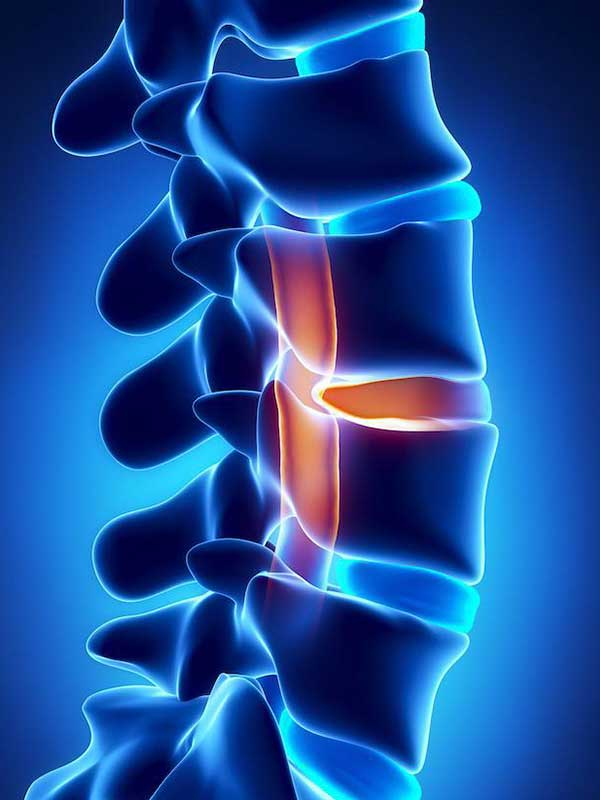 Back pain and disability