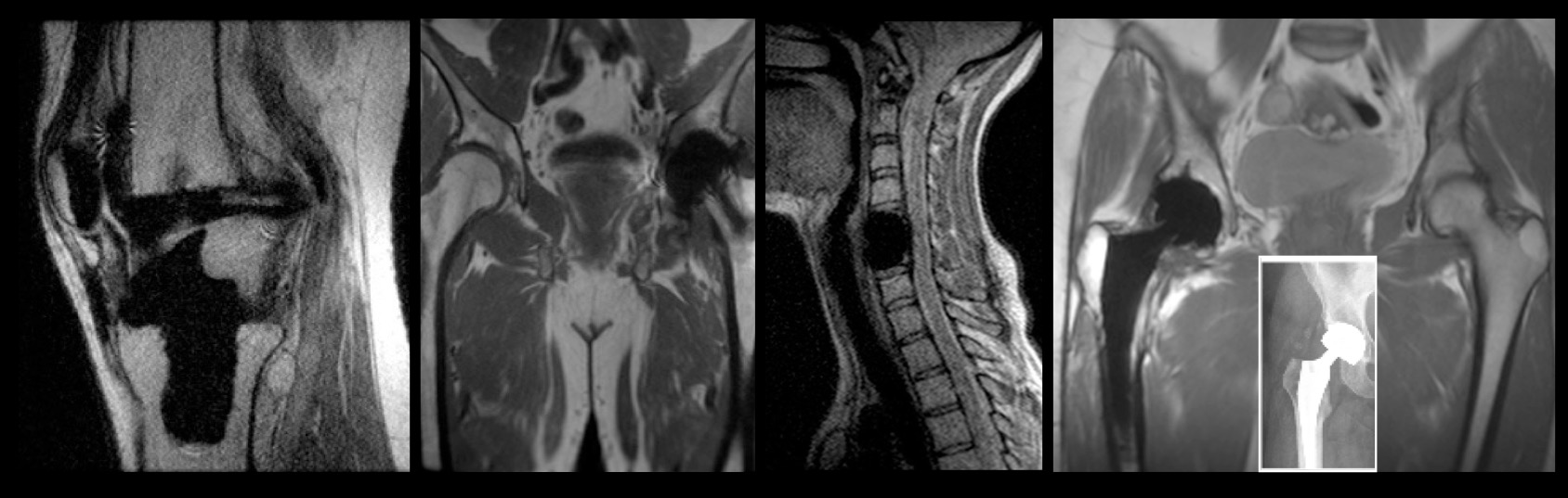 MRI Services - Oxford